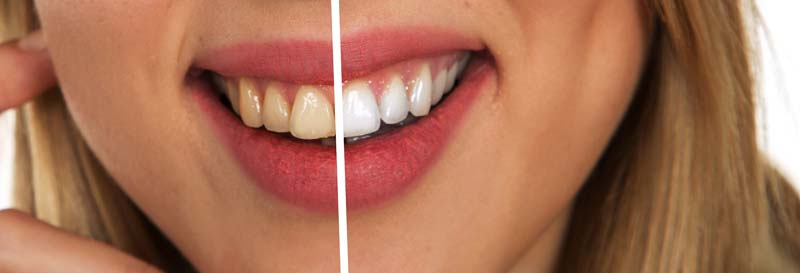 Skuteczne wybielanie zębów